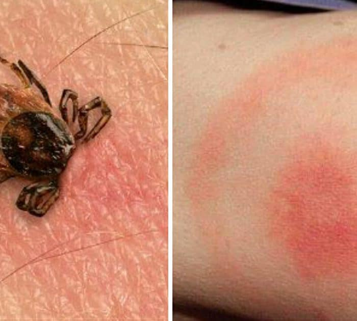 Tick Season: Here Are The Signs To Look For To Identify A Bite And Avoid Lyme Disease